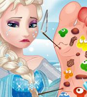 Elsa Foot Doctor 2